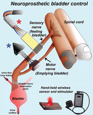 Neuroprosthetic bladder control